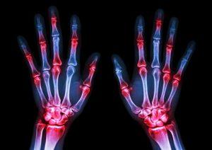 Romatoid Artrit Vücudun Hangi Bölgelerini Nasıl Etkiler?